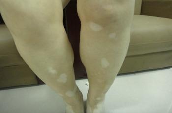 武汉女性治疗白癜风有哪些注意事项?