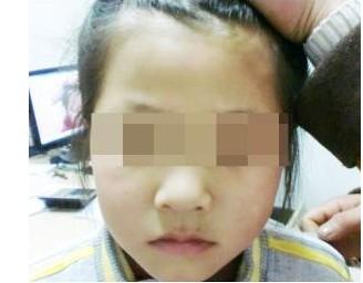 武汉脸上白斑会扩散是什么病