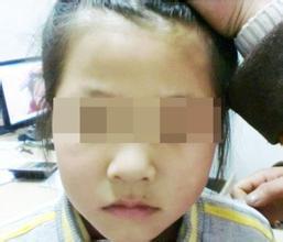 为什么孩子容易患上白癜风呢?武汉治白斑病最好的医院